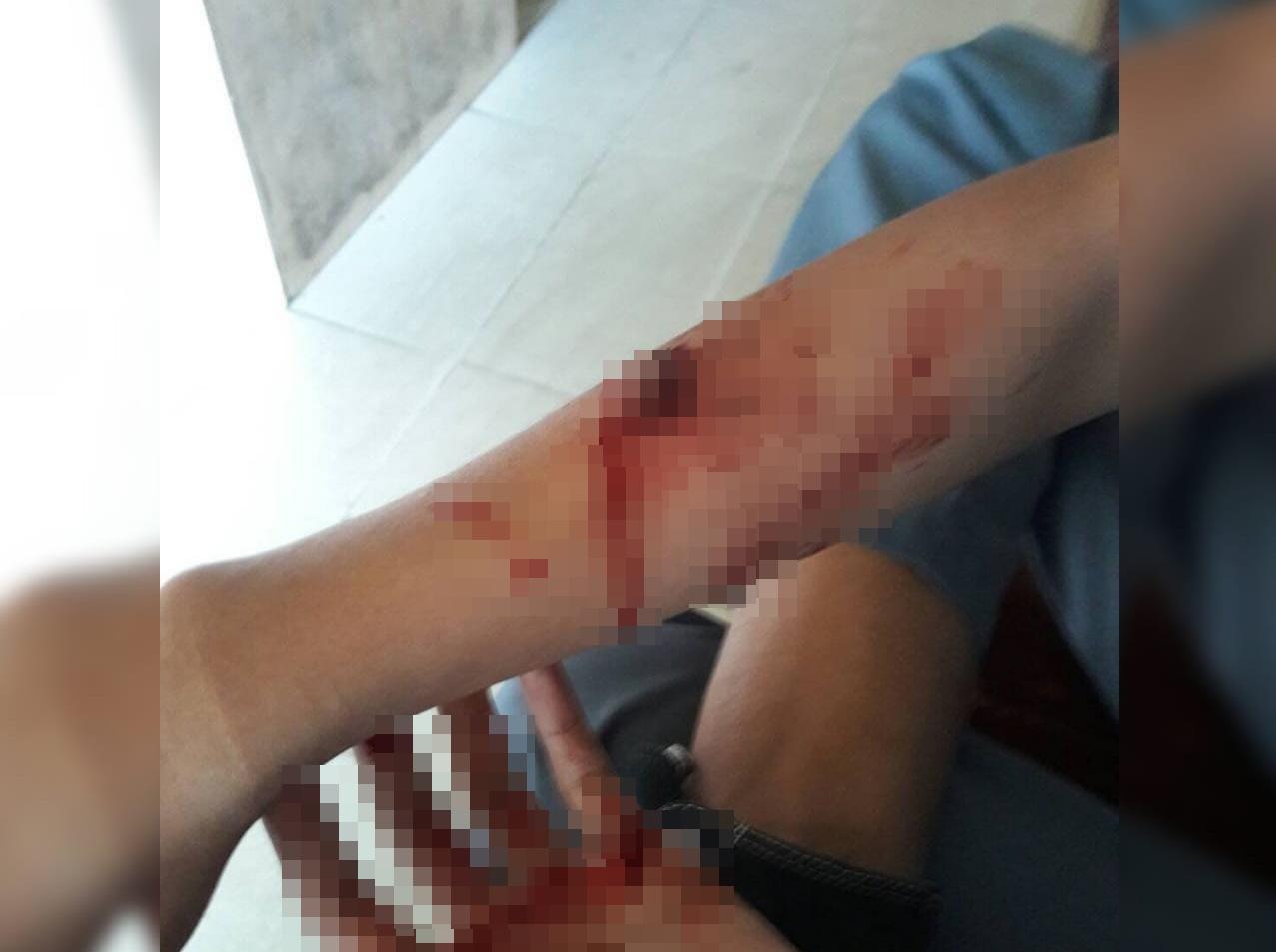 Salah seorang pelajar, MZ yang menjadi korban lemparan senjata tajam dari sekumpulan pelajar di kawasan Damar, Kota Padang, Jumat 20 Juli 2018. Foto : Istimewa